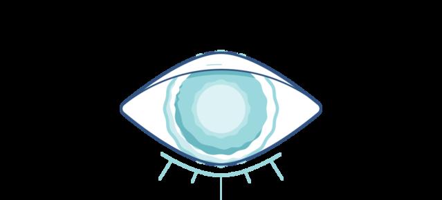 Illustration d'un oeil nuageux