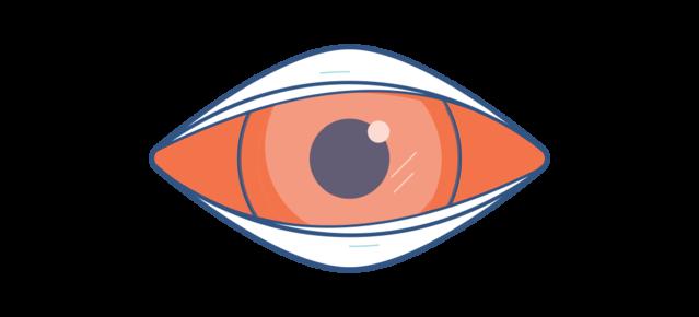 Illustration d'un oeil rouge et douloureux.