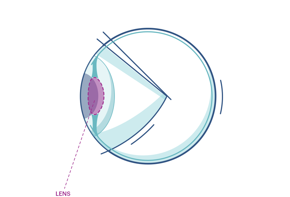 Illustration de tout œil mettant en évidence le cristallin.
