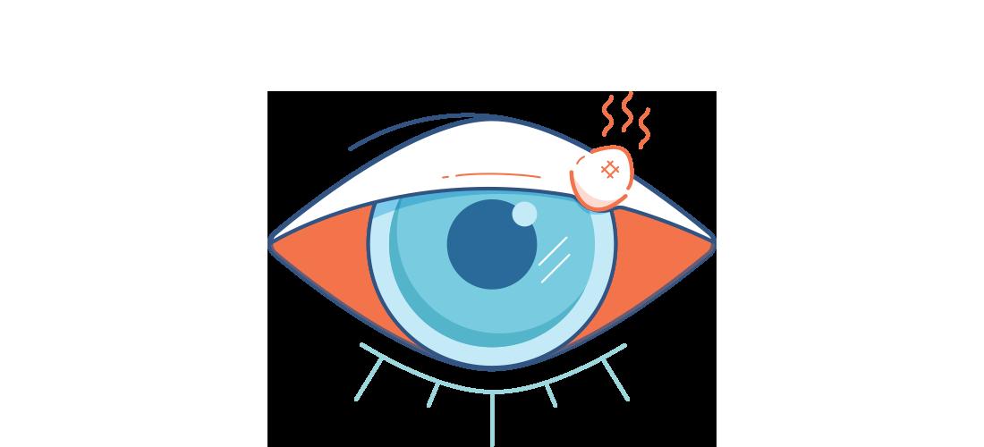 Illustration d'un oeil rouge avec un orgelet rouge et douloureux